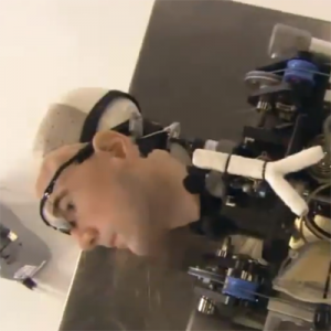 Britain's $1M medtech man: Breakthroughs in medical prosthetics